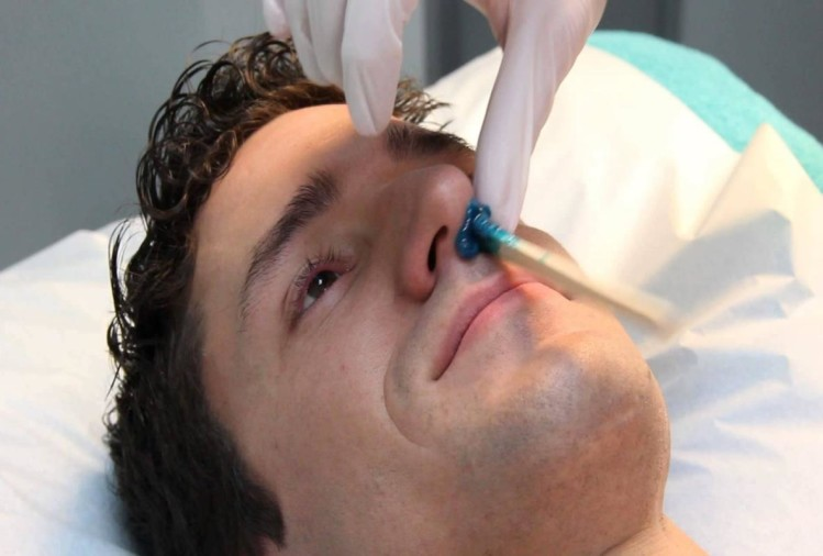 Electronic nose smell breath to warn about oesophageal cancer symptoms cause treatment