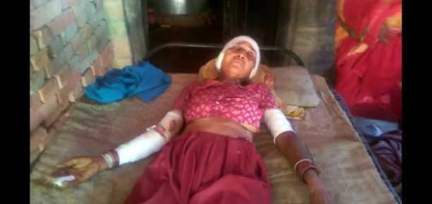 सुअर के हमले से 2 ग्रामीण घायल हो गए
