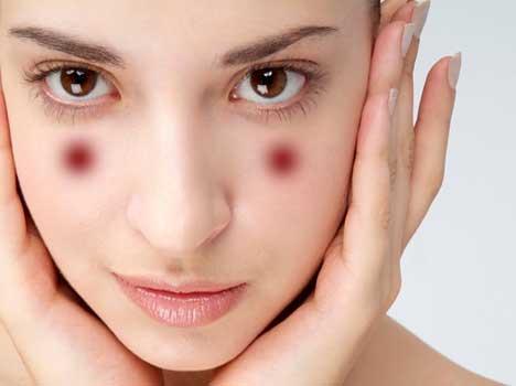 Acupressure Points For Glowing Skin - निखरी त्वचा चाहिए तो ...